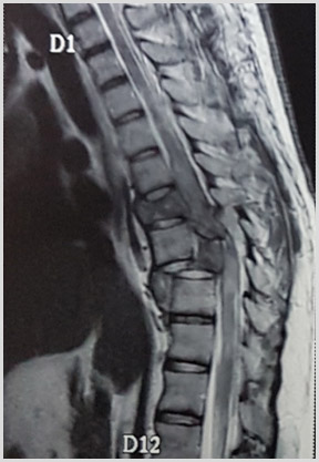 Spinal Trauma Pre Ooperation